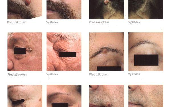 Odstranění znamének, pih či bradavic K-laserem3