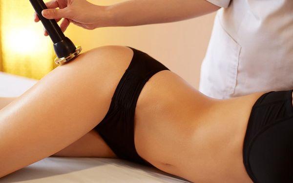 Neinvazivní liposukce jedné partie podle výběru