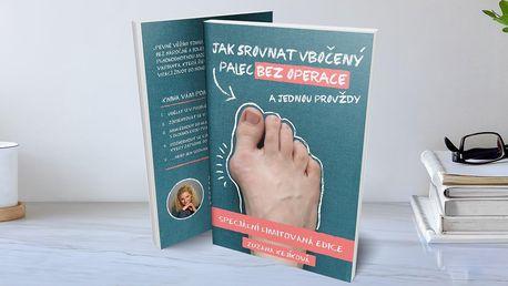 Naučte se: Jak srovnat vbočený palec bez operace