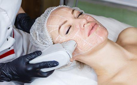 Neinvazivní lifting obličeje, krku či dekoltu: 40-70 min.