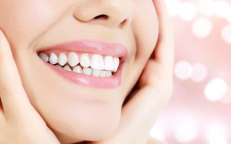 Ordinační bělení zubů včetně dentální hygieny